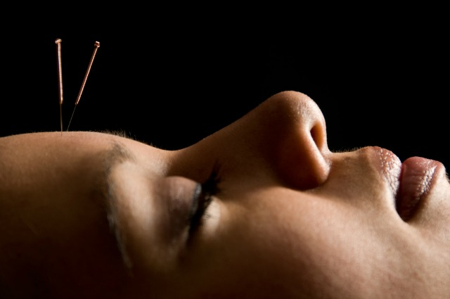 acupuncture increases number of neurons helps cognition study shows