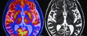 Glutamate levels in brain can play a role in alcohol relapse, says study